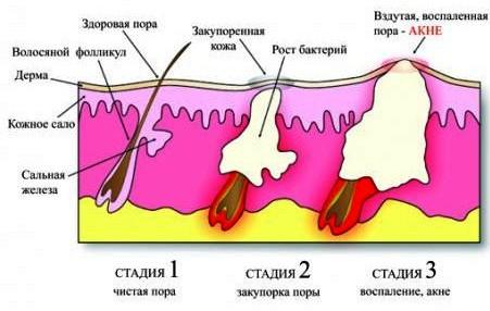 Пониженный иммунитет стрессы неврозы